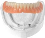 implant_overdentures1